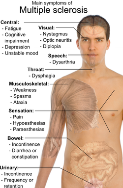 Symptomen MS